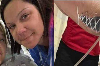Una niña se infectó con una bacteria come carne durante unas vacaciones en Florida