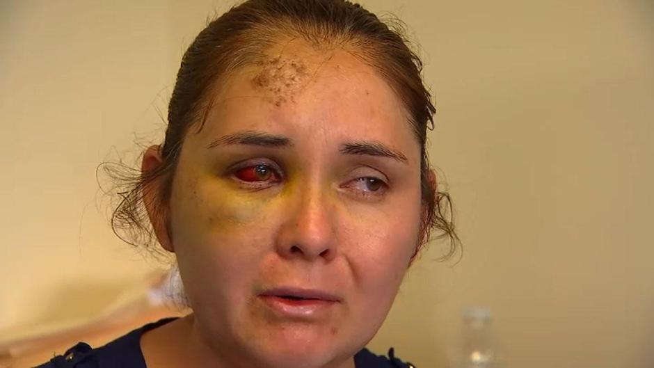 """""""Vete a México"""": Una madre denuncia que sufrió una brutal golpiza e insultos racistas"""