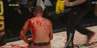 Un brutal 'baño de sangre' obliga a suspenden una pelea de MMA