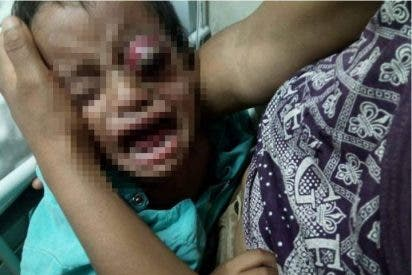 México: Un despiadado padre golpea hasta sacarle el ojo a su bebé de dos años