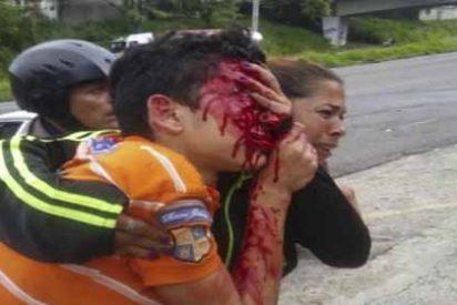 Ésta es la foto que el chavismo quiere ocultar: Así quedó el joven que le vaciaron los ojos por protestar contra Maduro
