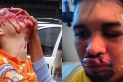 La técnica chavista para desfigurar a opositores: Disparar perdigones al rostro y a quemarropa