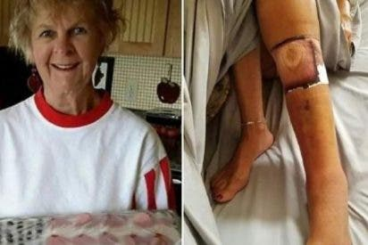 Muere la mujer infectada con una bacteria carnívora que contrajo en una playa de Florida