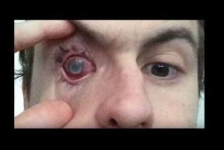 Perdió un ojo al usar una lentilla con un parásito dentro de ella