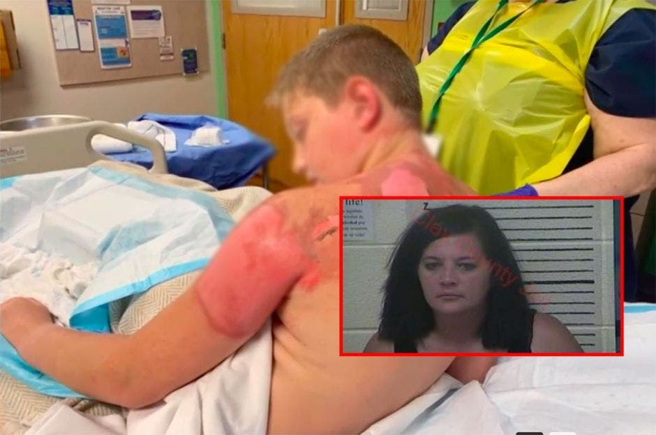 """Arrestan a una madre después de que su hijo quemara a un amigo en """"reto de agua caliente"""""""