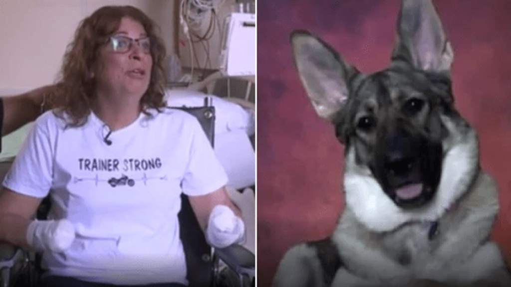 Pierde los brazos y piernas por culpa de su adorable perro