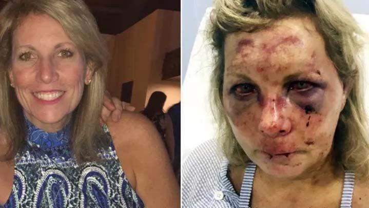 Una salvaje paliza a una turista de EEUU obliga a cerrar un hotel en Dominicana