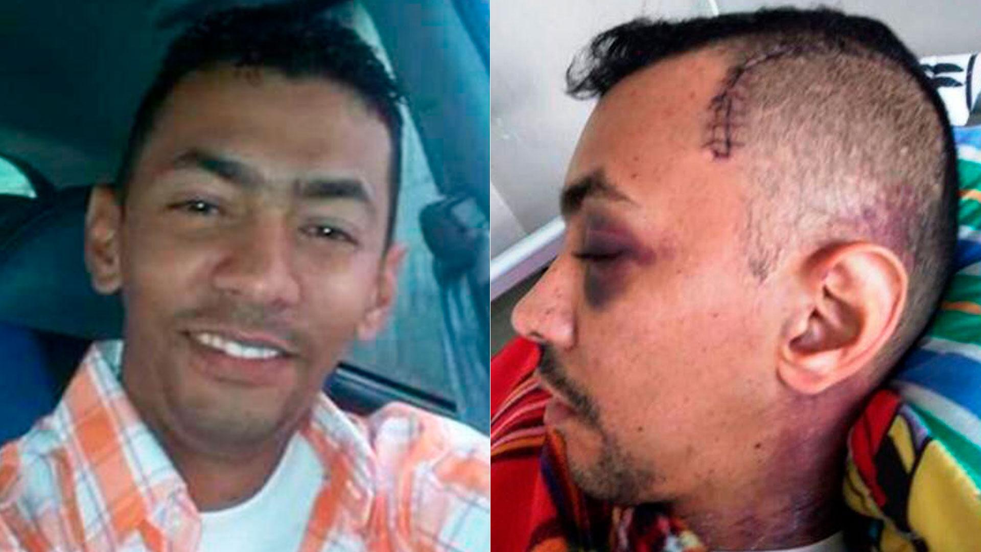 El chavismo niegan la asistencia médica a dos oficiales detenidos y torturados por rebelión