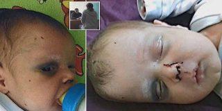 Dantesco hecho de violencia familiar: Una madre propina una brutal paliza a su bebé de un mes por fastidiarle la cita