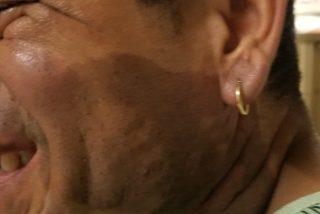 El ataque con ácido contra un peruano en EEUU se juzgará como crimen de odio