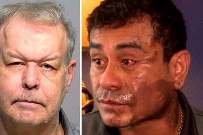 Vídeo: Racista norteamericano echa ácido al rostro de un peruano por