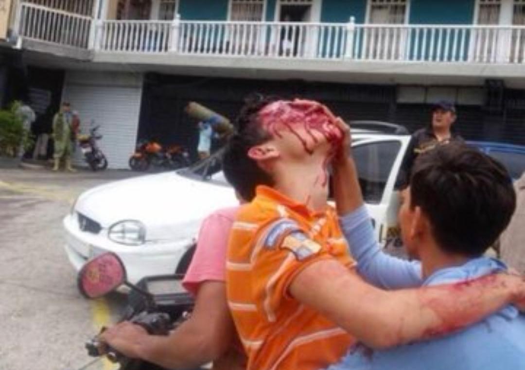 Venezolano al que la policía chavista le arrancó los ojos muestra su cara horas antes de exiliarse en España