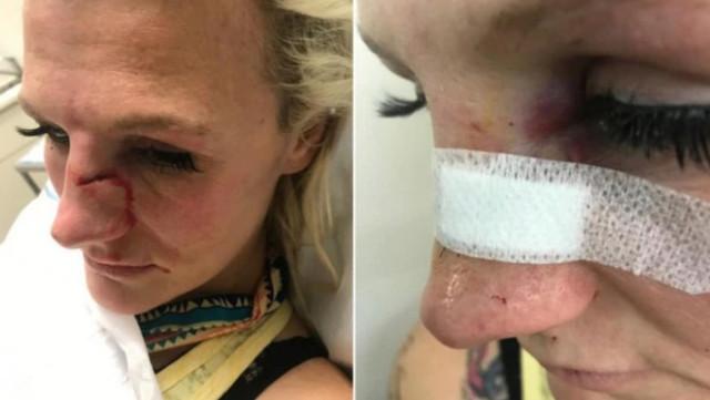 La luchadora de MMA Cindy Dandois sufrió una brutal agresión machista tras un ataque de celos de su ex