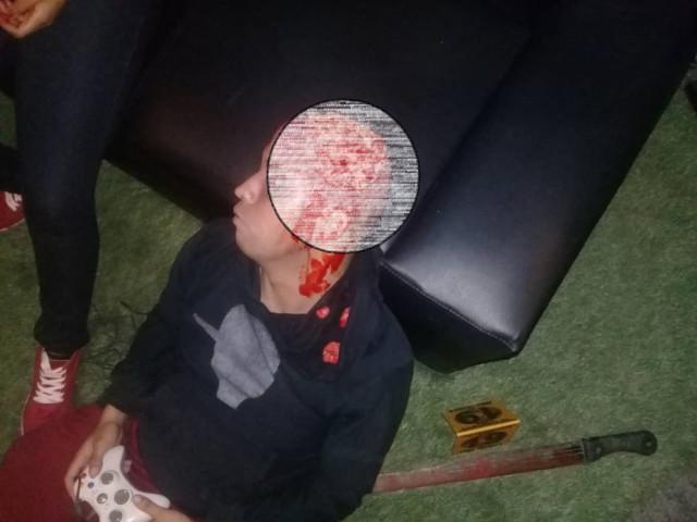 """Cuerpos quemados y mutilados: Así """"divierte"""" la policía chavista a los niños venezolanos"""