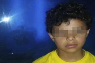 ¡Mucho cuidado!: Un niño pierde toda su piel por culpa de una medicina, la dosis y una cadena de errores