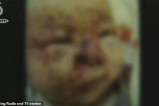 Un grupo de ratones devoran la cara de una bebé de 3 meses